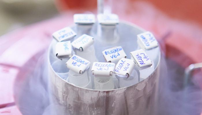 Sperm Dondurma ve Saklama Nedir, Hangi Durumlarda Yapılır?