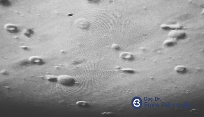 Azospermik Erkeklerde Dondurulmuş Sperm ICSI başarısı