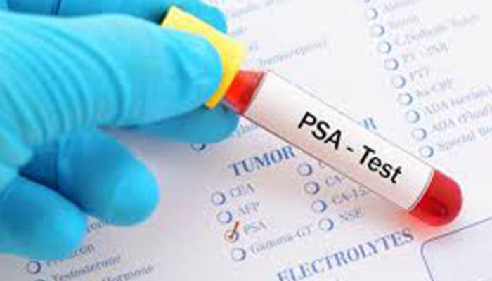 Prostat Kanseri Teşhisinde 55 Yaş Öncesine PSA Testi Artık Önerilmiyor
