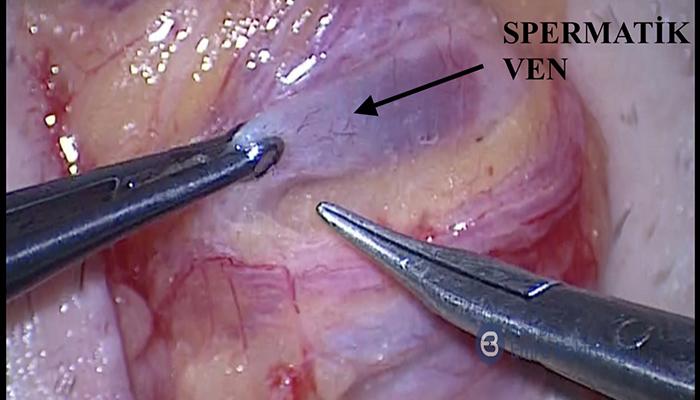 Azospermik Erkeklerde Varikosel Tedavisi Sperm Çıkışını Sağlayabilir