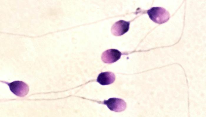 Sperm DNA Hasarı